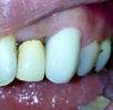 左上の前歯にオールセラミックス